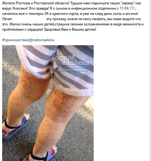"""Сальчанка утверждает, что ее сын """"принес"""" вирус Коксаки из детского сада, фото-1"""