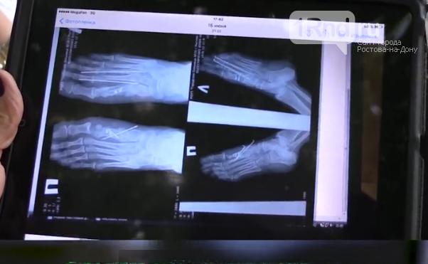 Хирург ростовской больницы сделал инвалидами трех женщин, фото-1