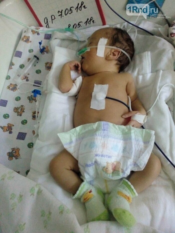 Двухмесячной малышке из Аксая срочно нужна операция на сердце , фото-1