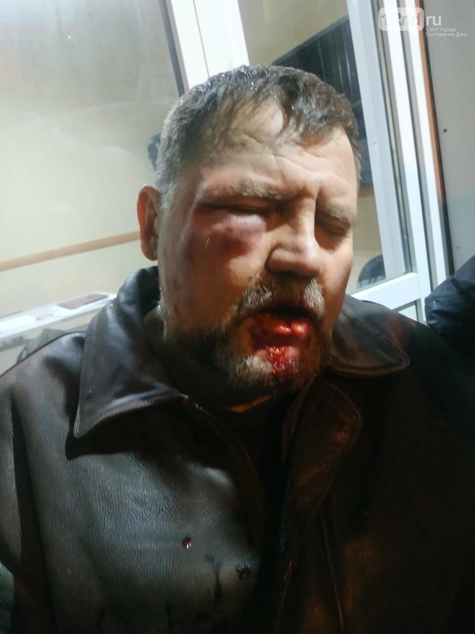 Ростовчанина жестоко избили за поврежденный шлагбаум ТСН возле Суворовского, фото-1