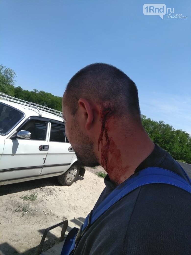 Ростовчанина жестоко избили за поврежденный шлагбаум ТСН возле Суворовского, фото-2