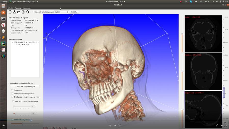 ДГТУ, УрФУ и Первый Мед сделают программу для автоматизированного проектирования протезов , фото-2