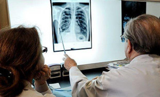 Суд обязал жительницу Ростовской области лечиться от туберкулеза